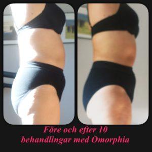 Omorphia före och efter